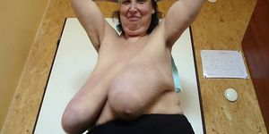 Gilf with Huge Saggy Breasts Gigantomastia